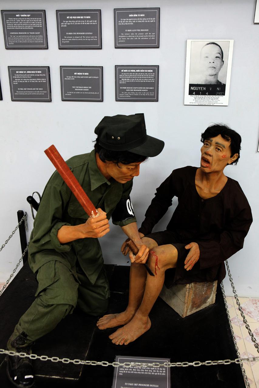 Извлечение стамеской коленной чашечки